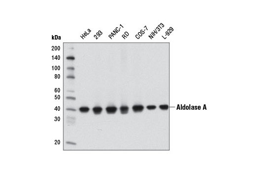 Image 1: Glycolysis II Antibody Sampler Kit