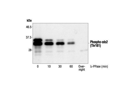 Western blot analysis of cdc2 kinase treated with lambda protein phosphatase (lambda-PPase) for the indicated times, using Phospho-cdc2 (Thr161) Antibody.