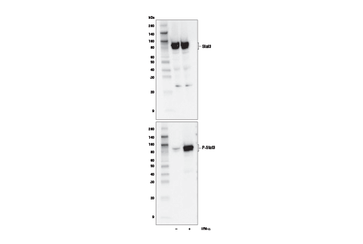 Western Blotting Image 2: Stat1/2/3/5 Control Cell Extracts