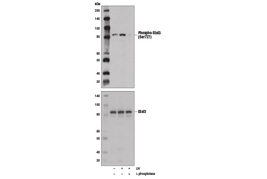 Western blot analysis of extracts from A172 cells, untreated (-) or UV-treated (100 mJ, 30 min; +) with or without λ phosphatase (+), using Phospho-Stat3 (Ser727) Antibody (upper) and Stat3 (79D7) Rabbit mAb #4904 (lower).