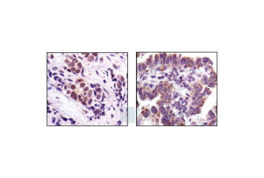 Immunohistochemical analysis of paraffin-embedded human breast carcinoma (left), showing nuclear and cytoplasmic staining, and human lung carcinoma (right), showing cytoplasmic staining, using Stat3 (124H6) Mouse mAb.