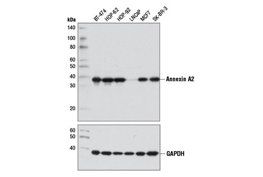 Western blot analysis of extracts from various cell lines using Annexin A2 (D11G2) Rabbit mAb (upper) and GAPDH (14C10) Rabbit mAb #2118 (lower).