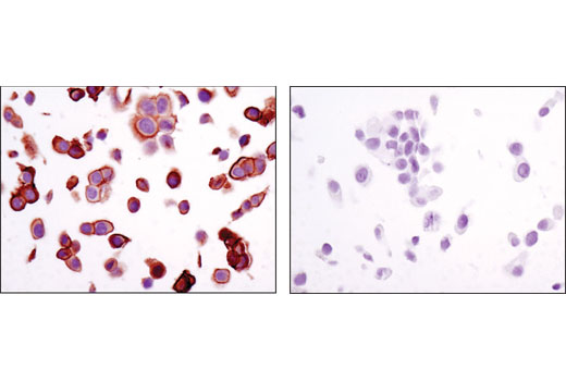 Immunohistochemical analysis of paraffin-embedded MCF7 (left) or LNCaP (right) cell pellets using Annexin A2 (D11G2) Rabbit mAb.