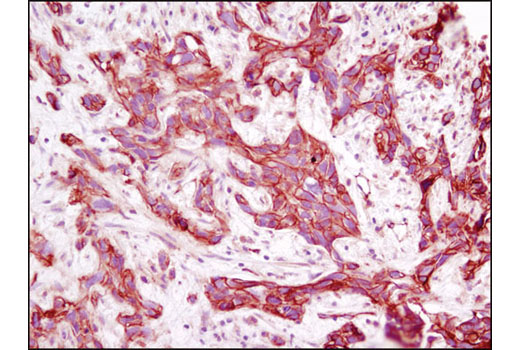 Immunohistochemical analysis of paraffin-embedded human breast carcinoma using Annexin A2 (D11G2) Rabbit mAb.