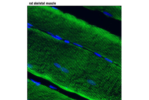 Confocal immunofluorescent analysis of rat skeletal muscle using RyR1 (D4E1) Rabbit mAb (green). Blue pseudocolor = DRAQ5<sup>®</sup> #4084 (fluorescent DNA dye).