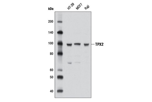 Polyclonal Antibody - TPX2 Antibody - Western Blotting, UniProt ID Q9ULW0, Entrez ID 22974 #8559, Cell Cycle / Checkpoint