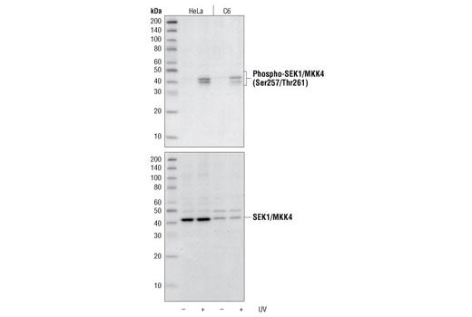 Polyclonal Antibody - Phospho-SEK1/MKK4 (Ser257/Thr261) Antibody, UniProt ID P45985, Entrez ID 6416 #9156 - Map Kinase Signaling
