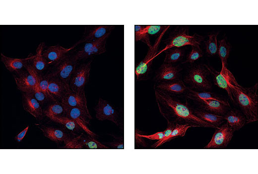 Confocal immunofluorescent images of C6 cells, untreated (left) or anisomycin treated (right), labeled with Phospho-c-Jun (Ser73) Antibody (green) and beta-Tubulin Antibody #2146 (red). Blue pseudocolor = DRAQ5<sup>®</sup> #4084 (fluorescent DNA dye).
