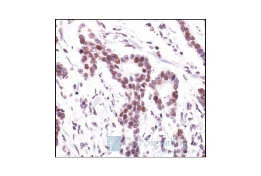 Immunohistochemical analysis of paraffin-embedded human colon carcinoma, using c-Jun (60A8) Rabbit mAb.