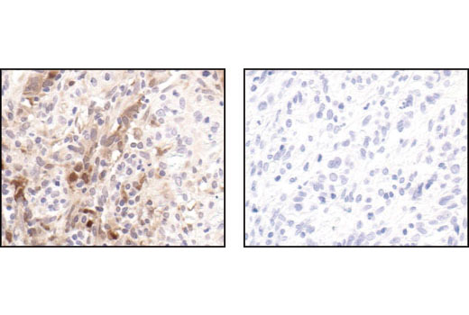 Immunohistochemical analysis of paraffin-embedded human colon carcinoma, using Stat1 (42H3) Rabbit mAb (Human Specific) in the presence of control peptide (left) or Stat1 blocking peptide (9175 specific) #1079 (right).