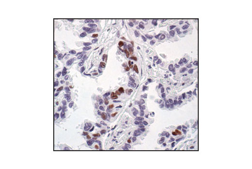 Immunohistochemical analysis of paraffin-embedded human lung carcinoma, showing nuclear staining, using Phospho-CREB (Ser133) (87G3) Rabbit mAb.
