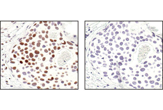 Immunohistochemical analysis of paraffin-embedded human breast carcinoma, using Phospho-CREB (Ser133) (87G3) Rabbit mAb in the presence of control peptide (left) or Phospho-CREB (Ser133) Blocking Peptide #1090 (right).