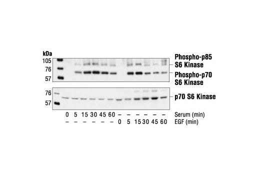Western blot analysis of extracts from 293 cells, untreated, serum-treated or EGF-treated (100 ng/ml), using Phospho-p70 S6 Kinase (Thr421/Ser424) Antibody (upper) or p70 S6 Kinase Antibody #9202 (lower).