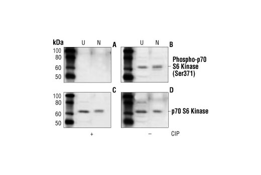 Western blot analysis of lysates from unsynchronized (U) and nocodazole (N) treated (50ng/ml for 48 hours) HT29 cells using Phospho-p70 S6 Kinase (Ser371) Antibody (B) and p70 S6 Kinase Antibody #9202 (D). Incubation of the nitrocellulose membrane with calf intestinal alkaline phosphatase (CIP) after Western transfer abolishes the phospho-p70 S6 Kinase signal (A), but has no effect on the total p70 S6 kinase signal (C).