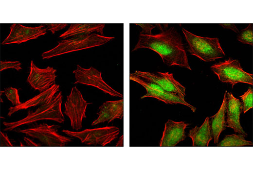 Polyclonal Antibody Immunoprecipitation Positive Regulation of Myoblast Differentiation