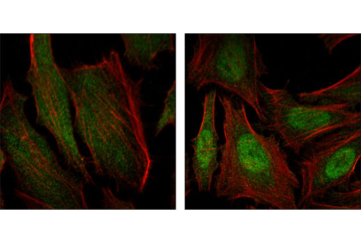 Polyclonal Antibody Immunofluorescence Immunocytochemistry Skeletal Muscle Development