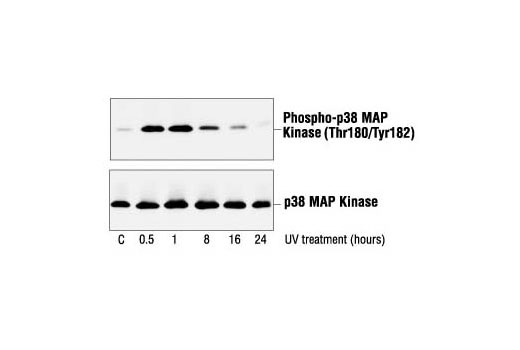 Western blot analysis of extracts from NIH/3T3 cells, untreated or UV-treated for the indicated times, using Phospho-p38 MAPK (Thr180/Tyr182) Antibody #9211 (upper) or p38 MAPK Antibody (lower).
