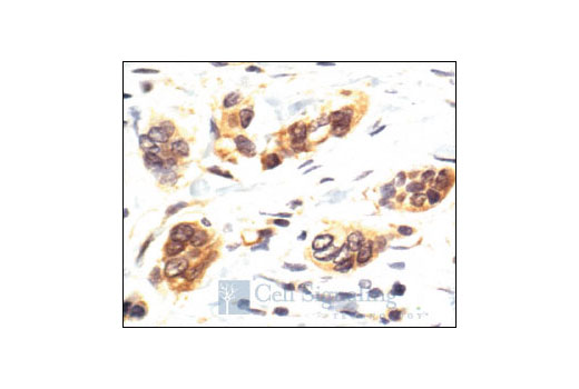 Immunohistochemical analysis of paraffin-embedded human breast carcinoma, showing nuclear and cytoplasmic localization, using p38 MAPK Antibody.