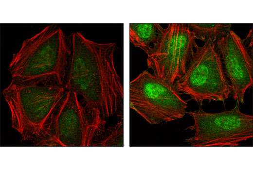 Confocal immunofluorescent analysis of HeLa cells either untreated (left) or anisomycin treated (right) labeled with Phospho-p38 MAP Kinase (Thr180/Tyr182) (28B10) Mouse mAb (green). Actin filaments have been labeled with Alexa Fluor Phalloidin 555 (red).