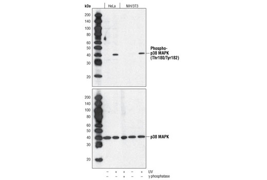 Western blot analysis of extracts from HeLa and NIH/3T3 cells, untreated or treated as indicated, using Phospho-p38 MAPK (Thr180/Tyr182) (28B10) Mouse mAb (upper) or p38 MAPK Antibody #9212 (lower).
