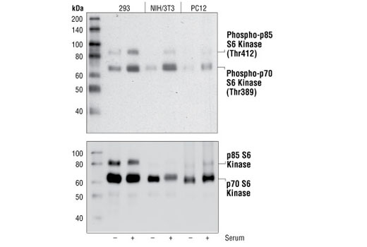 Western blot analysis of extracts from serum starved or serum treated (20%) 293, NIH/3T3, and PC12 cells, using Phospho-p70 S6 Kinase (Thr389) (108D2) Rabbit mAb (upper), or p70 S6 Kinase (49D7) rabbit mAb #2708 (lower).