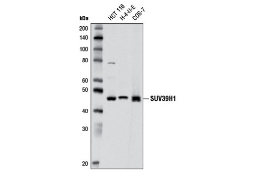 Monoclonal Antibody Immunoprecipitation Histone Methyltransferase Activity