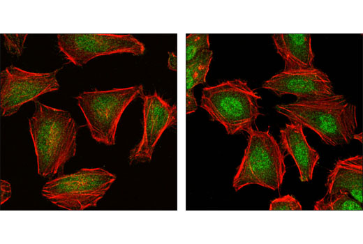 Confocal immunofluorescent analysis of HeLa cells untreated (left) and anisomycin-treated (right) using Phospho-SAPK/JNK (Thr183/Tyr185) (G9) Mouse mAb (green). Actin filaments have been labeled with DY554 phalloidin (red).