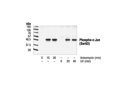 Western blot analysis of extracts from anisomycin or UV-treated NIH/3T3 cells, using Phospho-c-Jun (Ser63) II Antibody.