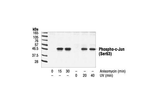 Polyclonal Antibody - Phospho-c-Jun (Ser63) II Antibody - Immunoprecipitation, Western Blotting, UniProt ID P05412, Entrez ID 3725 #9261 - #9261