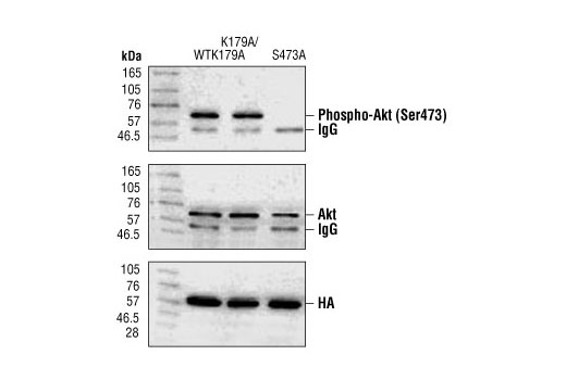 Western blot analysis of immunoprecipitated Akt from 293 cells transiently transfected with HA-tagged Akt (WT), HA-tagged K179A mutant Akt and HA-tagged K179A/S473A mutant Akt, using Phospho-Akt (Ser473) Antibody (upper), Akt antibody (middle) or HA antibody (lower). Phospho-Akt (Ser473) Antibody does not recognize Akt with an alanine substituion at Ser473. (Polakiewicz, R.D. et al. [1998] J. Biol. Chem. 273, 23534-23541.)