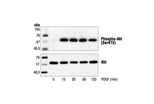 Western blot analysis of extracts from NIH/3T3 cells, untreated or treated with PDGF for the indicated times, using Phospho-Akt (Ser473) Antibody (upper) or Akt Antibody #9272 (lower).