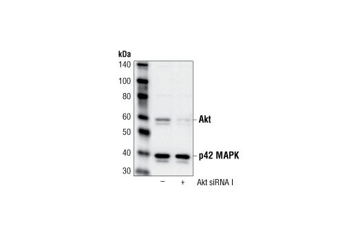 Western blot analysis of extracts from HeLa cells, transfected with 100 nM SignalSilence<sup>®</sup> Control siRNA (Fluorescein Conjugate) #6201 (-) or SignalSilence<sup>®</sup> Akt siRNA I (+), using Akt Antibody #9272 and p42 MAP Kinase (Erk2) Antibody #9108. Akt antibody confirms silencing of Akt expression, while the p42 MAP kinase (Erk2) antibody is used to control for loading and specificity of Akt siRNA.