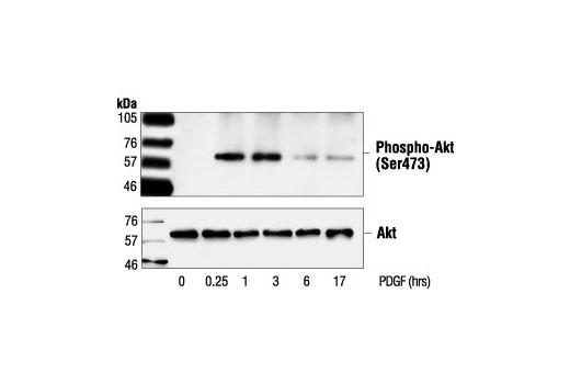 Western blot analysis of extracts from NIH/3T3 cells, untreated or PDGF-treated (50 ng/ml) for the indicated times, using Phospho-Akt (Ser473) Antibody #9271 (upper) or Akt Antibody (lower).