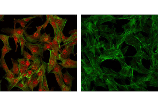 Confocal immunofluorescent images of C2C12 cells showing nuclear and cytoplasmic localization with Akt Antibody (left, red) compared to an isotype control (right). Actin filaments have been labeled with fluorescein phalloidin.