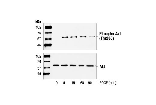 Polyclonal Antibody Immunoprecipitation Apoptotic Mitochondrial Changes