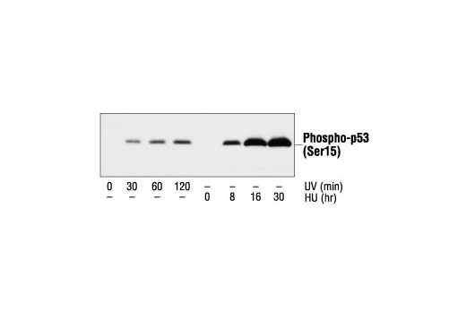 Western blot analysis of extracts from MvILu cells treated with UV or hydroxyurea (20 mM) for the indicated times, using Phospho-p53 (Ser15) Antibody.