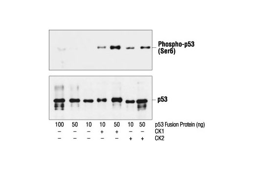 Western blot analysis of a p53 fusion protein, untreated or phosphorylated by CK1 or CK2, using Phospho-p53 (Ser6) Antibody (upper) or p53 Antibody #9282 (lower).
