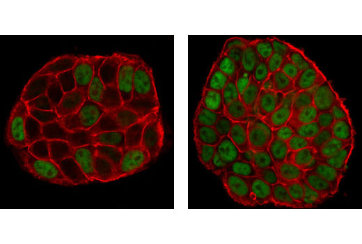 Confocal immunofluorescent analysis of HT-29 cells, untreated (left) or UV-treated (right), using Phospho-p53 (Ser15) (16G8) Mouse mAb (green). Actin filaments have been labeled with Alexa Fluor® 555 phalloidin (red).