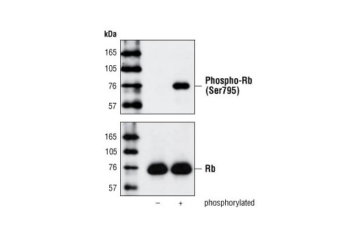 Western blot analysis of Rb Control Protein #9303, using Phospho-Rb (Ser795) Antibody (upper) or Rb (4H1) mAb #9309 (lower).