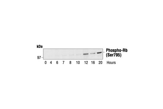 Western blot analysis of extracts from human fibroblasts synchronized by serum deprivation, using Phospho-Rb (Ser795) Antibody. Cells were synchronized for 24 hours, then released by addition of serum and harvested at the times indicated. Cell cycle progression was verified by cyclin analysis and FACS. (Provided by John Boylan, Dupont/Merck, Delaware.)