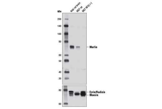 Western blot analysis of extracts from fetal rat brain, and both wild type and NF2(-/-) mouse embryonic fibroblasts (MEFs) using Merlin (D1D8) Rabbit mAb (upper) and Ezrin/Radixin/Moesin Antibody #3142 (lower). (MEF wt and MEF NF2(-/-) cells were kindly provided by Dr. Andrea McClatchey and Dr. Andrew Gladden, MGH Cancer Center and Harvard Medical School, Charlestown MA).