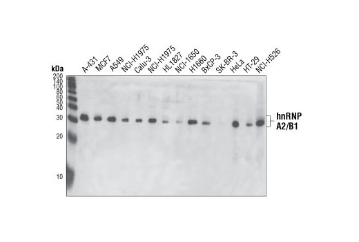 Western blot analysis of extracts from various cell lines using hnRNP A2/B1 (2A2) Mouse mAb.