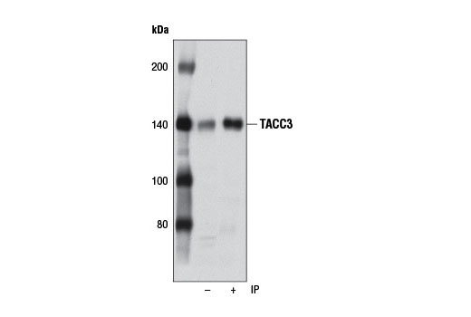 Immunoprecipitation of TACC3 from HT-29 cells using TACC3 (D9E4) XP<sup>®</sup> Rabbit mAb (+). Western blot was performed using the same antibody. Lane 1 is 5% input (-).