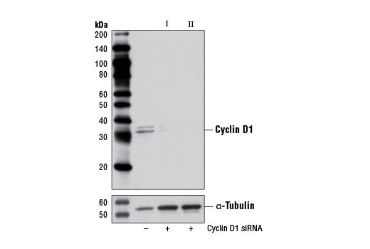 Western blot analysis of extracts from C2C12 cells, transfected with 100 nM SignalSilence<sup>®</sup> Control siRNA (Unconjugated) #6568 (-), SignalSilence<sup>®</sup> Cyclin D1 siRNA I (Mouse Specific) #6423 (+), or SignalSilence<sup>®</sup> Cyclin D1 siRNA II (Mouse Specific) (+), using Cyclin D1 (92G2) Rabbit mAb #2978 (upper) or α-Tubulin (11H10) Rabbit mAb #2125 (lower). The Cyclin D1 (92G2) Rabbit mAb confirms silencing of Cyclin D1 expression, while the α-Tubulin (11H10) Rabbit mAb is used as a loading control.