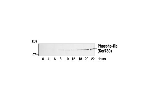 Western blot analysis of extracts from human fibroblasts synchronized by serum deprivation, using Phospho-Rb (Ser780) Antibody. Cells were synchronized for 24 hours then released by addition of serum and harvested at the times indicated. Cell cycle progression was verified by cyclin analysis and FACS. (Provided by John Boylan, Dupont/Merck, Delaware.)