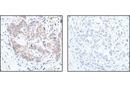 Immunohistochemical analysis of paraffin-embedded human breast carcinoma, using GSK-3beta (27C10) Rabbit mAb in the presence of control peptide (left) or GSK-3Beta Blocking Peptide #1073 (right).
