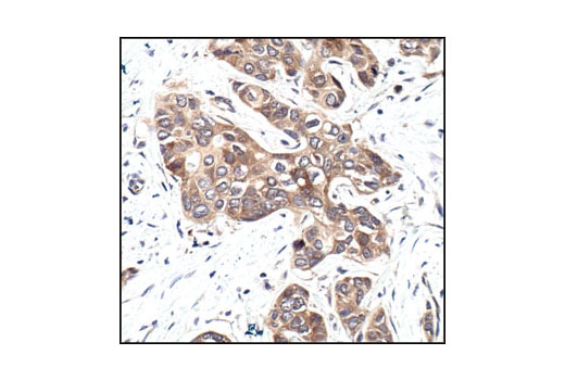 Immunohistochemical analysis of paraffin-embedded human breast carcinoma, showing cytoplasmic and nuclear localization using GSK-3β (27C10) Rabbit mAb.