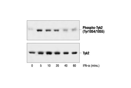 Western blot analysis of extracts from HeLa cells, untreated or interferon-α treated for the indicated times, using Phospho-Tyk2 (Tyr1054/1055) Antibody (upper) or Tyk2 Antibody #9312 (lower).