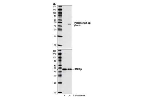Western blot analysis of extracts from NIH/3T3 cells, λ phosphatase treated or untreated, using Phospho-GSK-3bβ (Ser9) Antibody (upper) or GSK-3β (27C10) Rabbit mAb #9315 (lower).