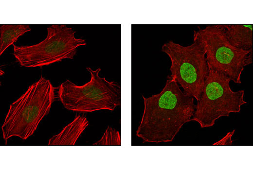 Confocal immunofluorescent analysis of HeLa cells, untreated (left) or TPA-treated (right), using Phospho-p90RSK (Thr573) Antibody (green). Actin filaments have been labeled with Alexa Fluor® 555 phalloidin (red).